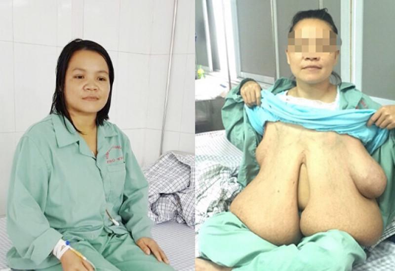 Hình Ảnh Vú Trần Đẹp Của Phụ Nữ Việt Nam Gái Xinh Hot Girl