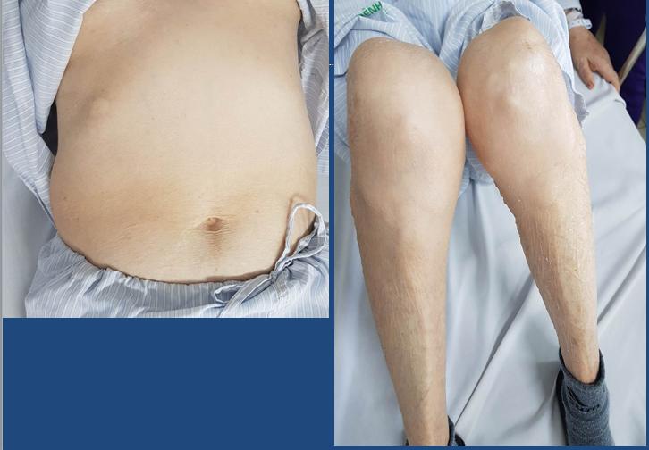 """Bác sĩ BV Bạch Mai: Corticoid không phải là """"thần dược"""", lạm dụng có thể gây suy tuyến thượng thận, loãng xương,... - Ảnh 3."""