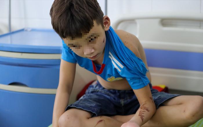 Hội Bảo vệ quyền trẻ em Việt Nam đề nghị Bắc Ninh nhanh chóng khởi tố hình sự vụ chủ tiệm bánh xèo đánh đập dã man trẻ em - Ảnh 2.