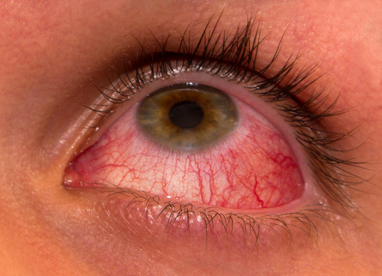 Những hình ảnh chi tiết nhất về triệu chứng của bệnh đau mắt đỏ - Ảnh 7.