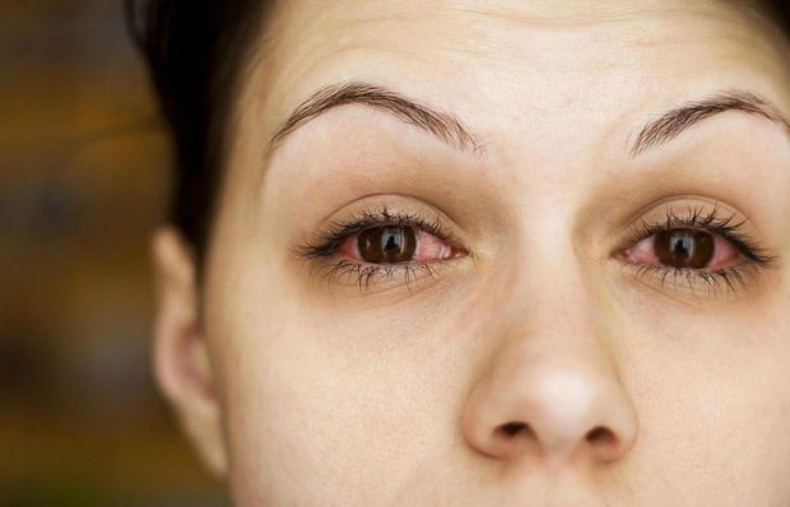 Những hình ảnh chi tiết nhất về triệu chứng của bệnh đau mắt đỏ - Ảnh 2.