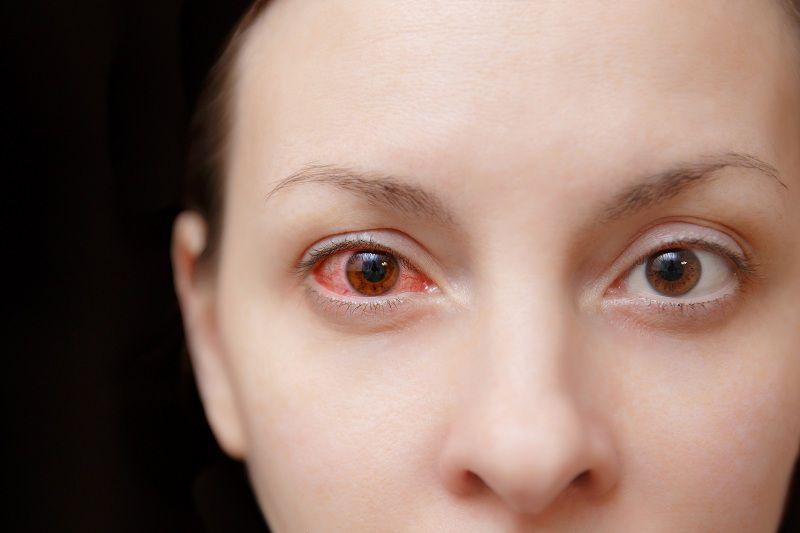 Những hình ảnh chi tiết nhất về triệu chứng của bệnh đau mắt đỏ - Ảnh 1.