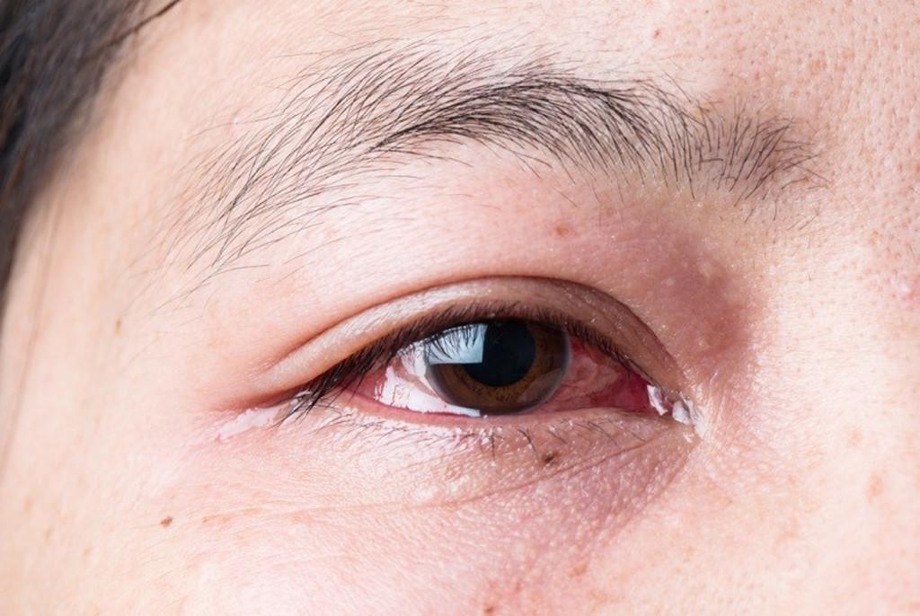 triệu chứng của bệnh đau mắt đỏ chảy nước mắt