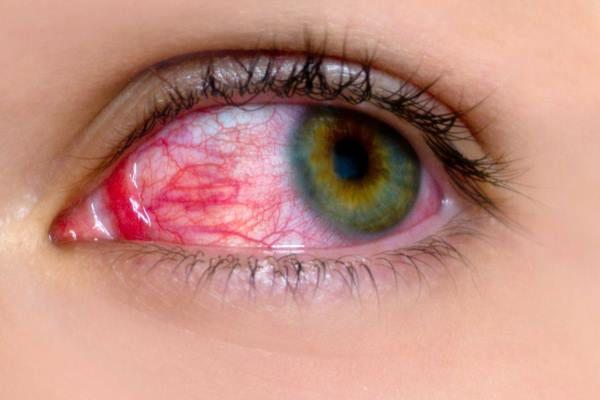 giả mạc triệu chứng của bệnh đau mắt đỏ