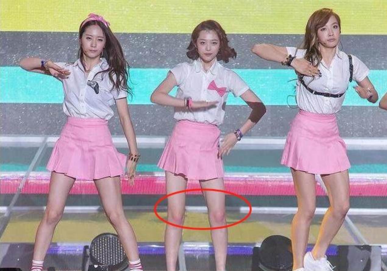 Đa số các nữ idol Kpop đều đánh phấn hồng lên đầu gối: Tưởng chỉ làm điệu ai ngờ nguyên nhân khiến ai cũng đau lòng  - Ảnh 4.