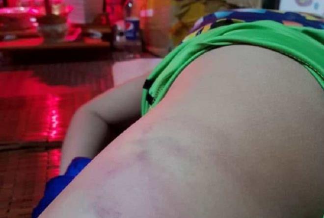 Một cô giáo ở Bình Định bị phụ huynh tố đánh học sinh bầm tím chân - Ảnh 1.