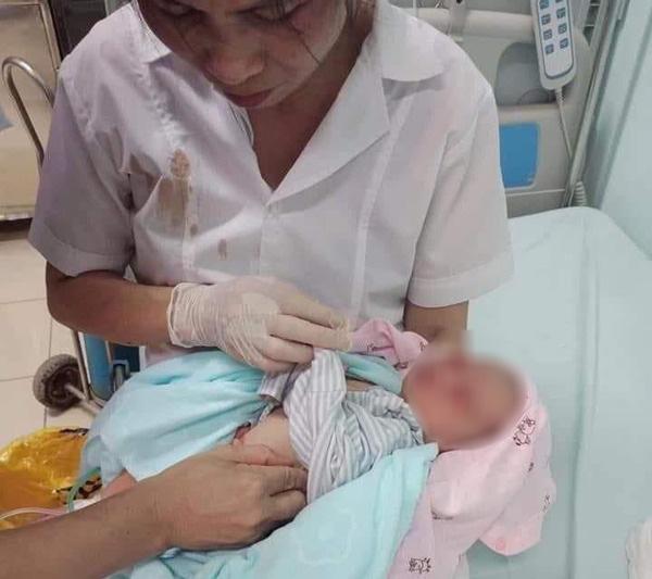 Bé sơ sinh bị bỏ rơi trong hố gas, cơ thể đầy dòi: Nguy cơ tổn thương mắt và tai - Ảnh 1.