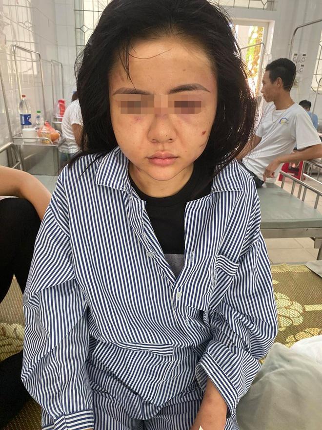 Cô gái bị gã trai xăm trổ đánh đập suốt 2 tiếng ở Yên Bái: Đã khởi tố vụ án - Ảnh 1.