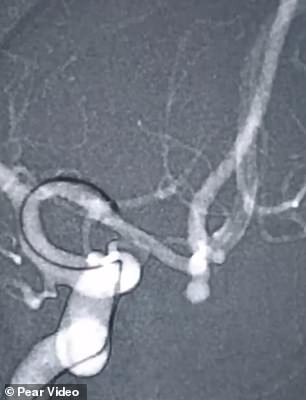 Bà cô 55 tuổi vỡ mạch máu não suýt chết vì cố hát giọng cao - Ảnh 1.