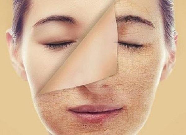 Nan giải đối mặt với loạt bệnh về da ngày hè, nhất là da đổ dầu, bóng nhờn - Ảnh 3.