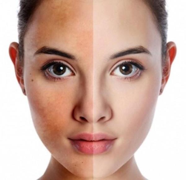 Nan giải đối mặt với loạt bệnh về da ngày hè, nhất là da đổ dầu, bóng nhờn - Ảnh 4.