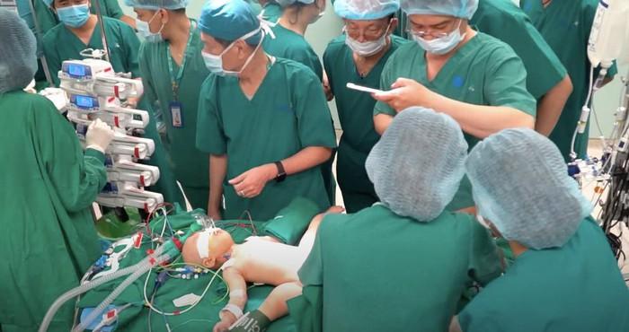 Cha mẹ bé gái song sinh dính liền bật khóc sau khi ca đại phẫu kết thúc thành công - Ảnh 4.