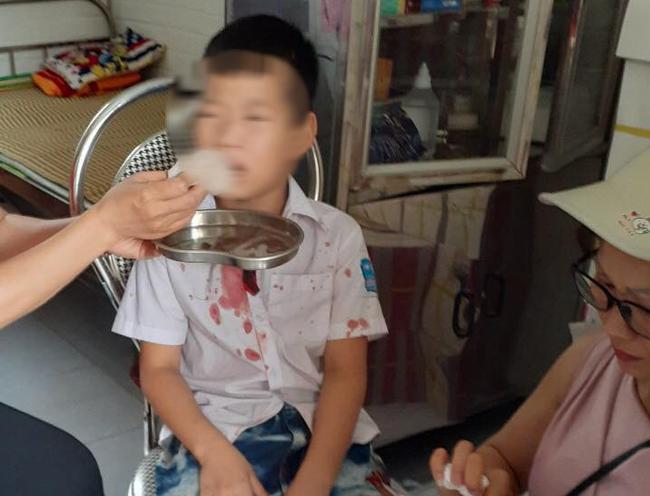 Vụ học sinh lớp 1 bị đánh nhập viện: Gia đình yêu cầu làm rõ trách nhiệm nhà trường - Ảnh 1.
