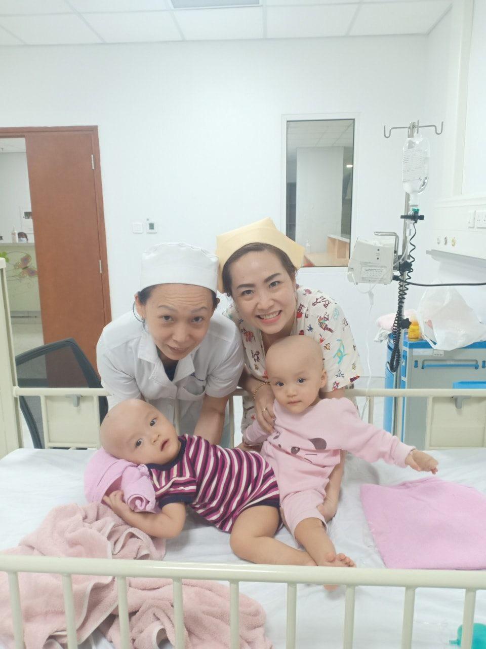 Song sinh dính liền: Nguyên nhân, triệu chứng, phẫu thuật và tỷ lệ sống sót - Ảnh 2.