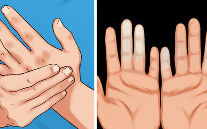 """Chăm sóc sức khỏe mùa lạnh: Bác sĩ khuyến cáo 3 vị trí """"sống còn"""" càng che kỹ càng khỏe  - Ảnh 4."""