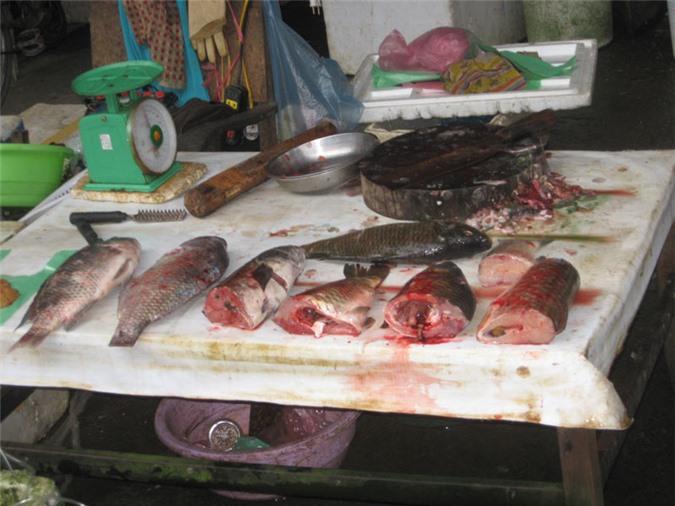 Ngộ độc thực phẩm: Triệu chứng và chẩn đoán ngộ độc thực phẩm - Ảnh 2.