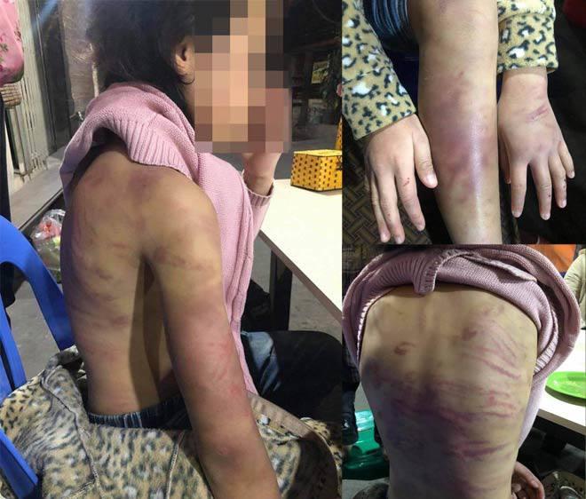 Hà Đông đề nghị Thành phố Hà Nội hỗ trợ giải quyết vụ cháu bé 12 tuổi bị bạo hành, hiếp dâm  - Ảnh 1.