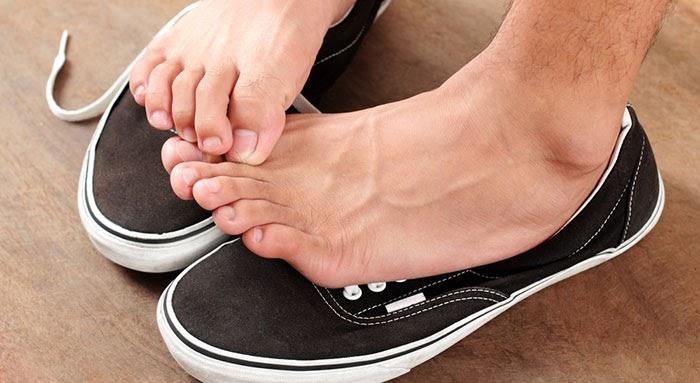Sai lầm khi chọn giày dép mùa hè có thể ảnh hưởng đến sức khoẻ như thế nào? - Ảnh 3.
