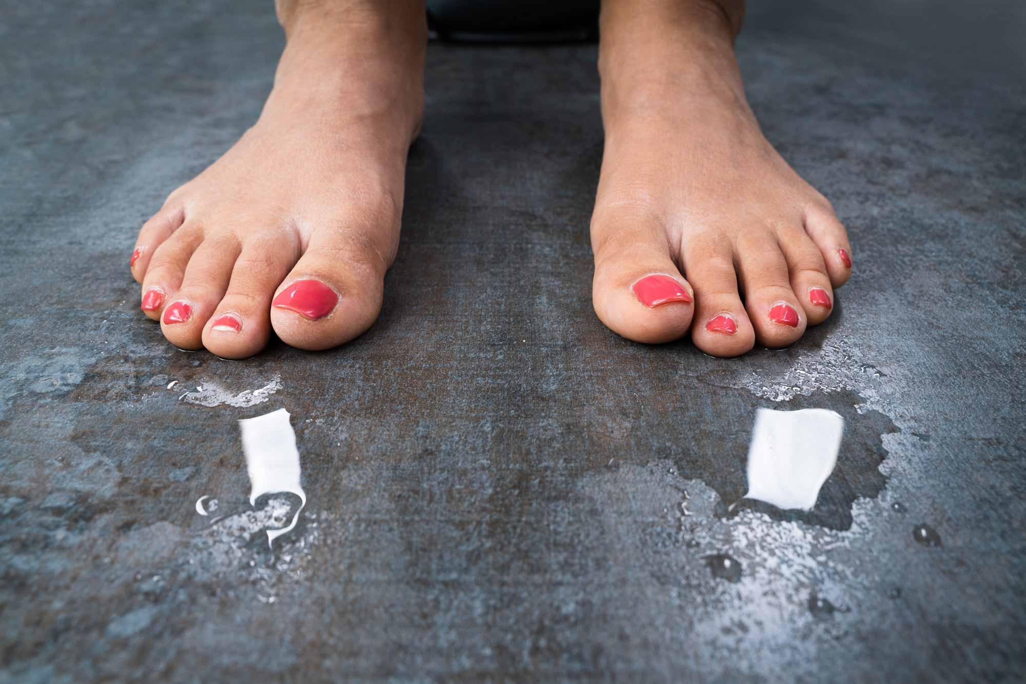 Thích đeo giày nhưng lại bị ra mồ hôi chân mùa hè, đừng bỏ qua 10 mẹo sau - Ảnh 2.