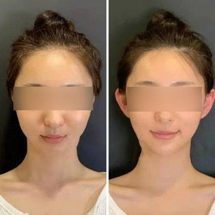 Trung Quốc rộ trào lưu phẫu thuật tạo hình để có 'tai yêu tinh' - Ảnh 1.