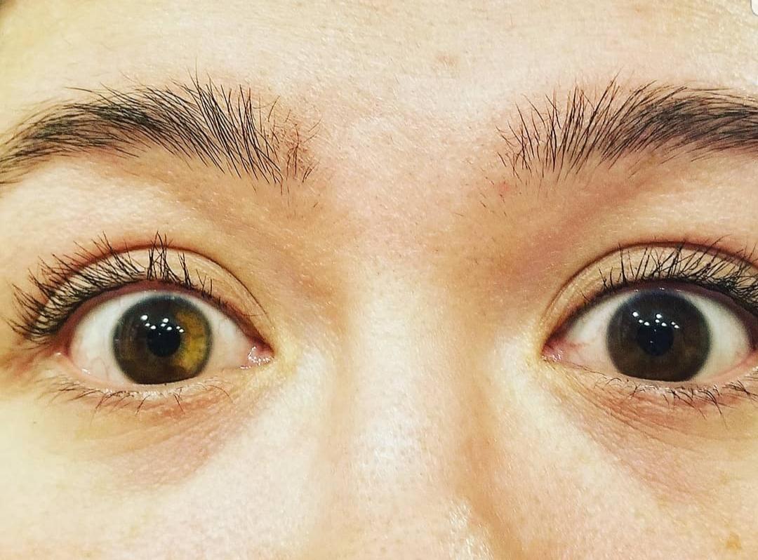 Loạn sắc tố mống mắt (Heterochromia Iridium): Nguyên nhân, dấu hiệu và cách điều trị - Ảnh 1.