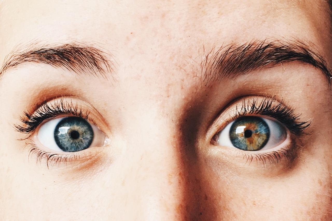 Loạn sắc tố mống mắt (Heterochromia Iridium): Nguyên nhân, dấu hiệu và cách điều trị - Ảnh 3.
