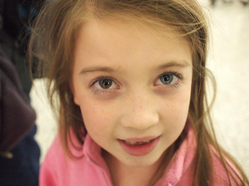 Loạn sắc tố mống mắt (Heterochromia Iridium): Nguyên nhân, dấu hiệu và cách điều trị - Ảnh 4.