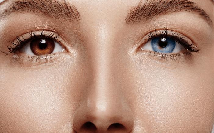 Loạn sắc tố mống mắt (Heterochromia Iridium): Nguyên nhân, dấu hiệu và cách điều trị - Ảnh 5.