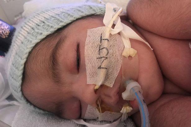 Tranh cãi khi tòa quyết định để bác sĩ ngừng hỗ trợ sự sống cho bé 4 tháng tuổi  - Ảnh 1.