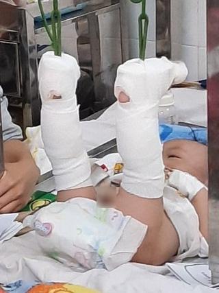 Bé trai 4 tháng tuổi nghi bị cha ruột đánh gãy chân, bầm tím khắp người, xuất huyết não - Ảnh 1.