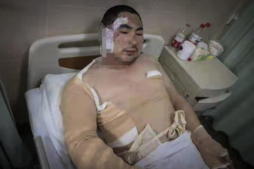 Chồng bỏ điều trị để nhường sự sống cho vợ và hai con sau vụ hỏa hoạn kinh hoàng - Ảnh 2.
