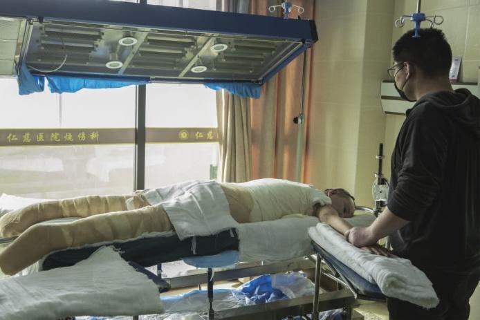 Chồng bỏ điều trị để nhường sự sống cho vợ và hai con sau vụ hỏa hoạn kinh hoàng - Ảnh 3.