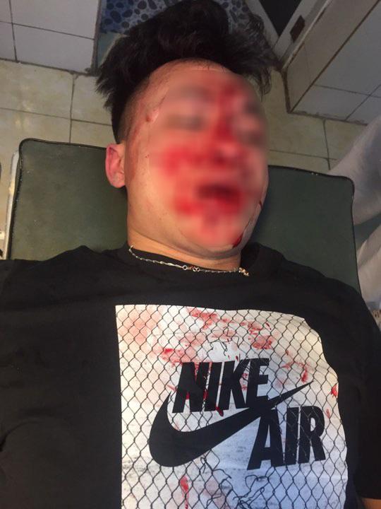 Can ngăn nhóm côn đồ, bác sĩ trẻ bị đánh gây thương tích nặng vùng mặt  - Ảnh 1.