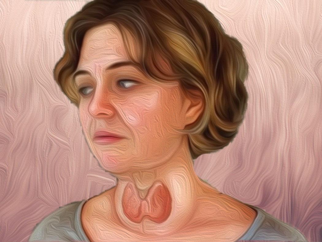 Bướu cổ là gì và những kiến thức tổng quan về bệnh bướu cổ-10
