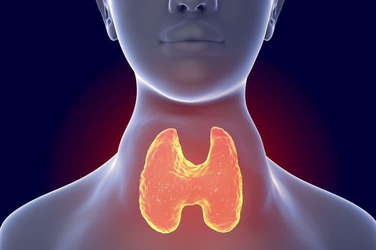 Bướu cổ là gì và những kiến thức tổng quan về bệnh bướu cổ-11
