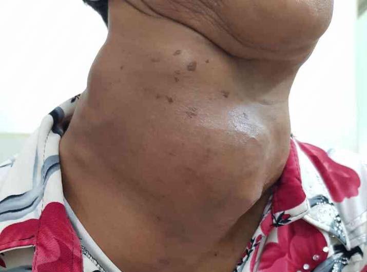 Bướu cổ là gì và những kiến thức tổng quan về bệnh bướu cổ-7