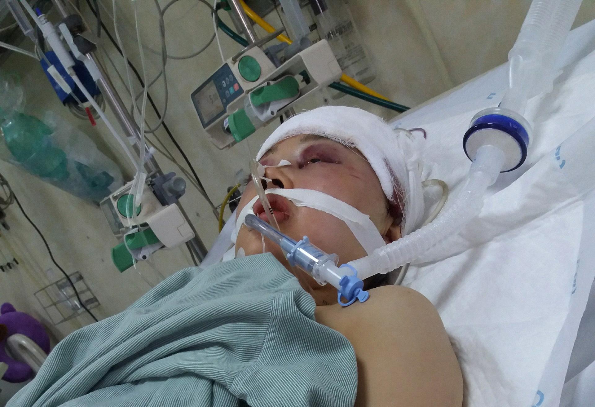 """Chị gái nguy kịch vì tai nạn giao thông, em trai sắp trở thành bác sỹ ước: """"Em chỉ mong rằng chị sẽ tỉnh lại!""""  - Ảnh 2."""