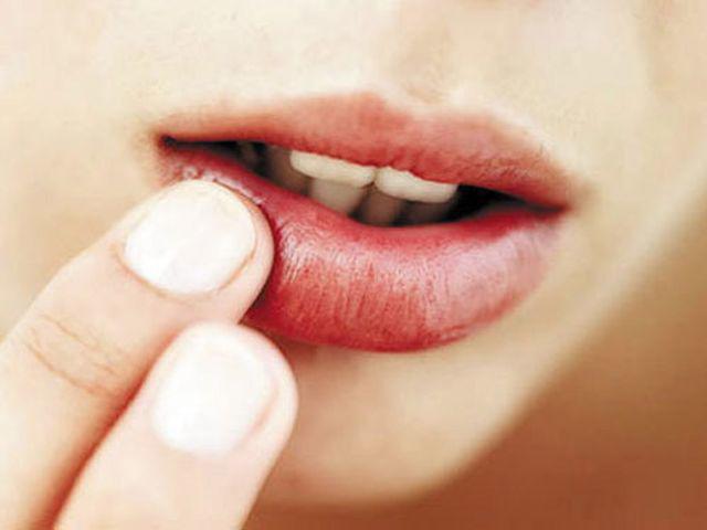 4 dấu hiện xuất hiện trên miệng cảnh báo phụ nữ có thể đang mắc bệnh phụ khoa - Ảnh 1.