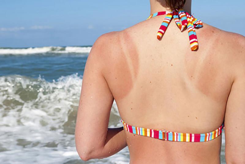 Cải thiện làn da cháy nắng: Đứng quá lâu dưới ánh nắng mặt trời có thể cháy nắng. Hàm lượng vitamin C và E có trong vải đã được chứng minh có hiệu quả điều trị cháy nắng và làm dịu da của bạn.