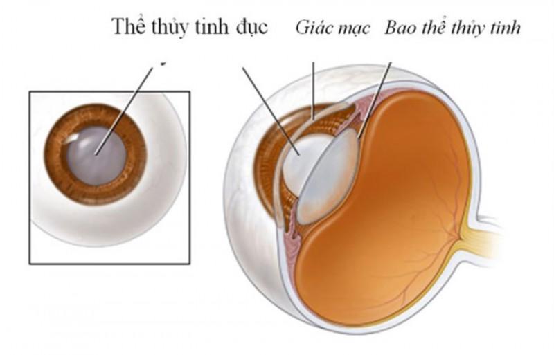 Ngăn ngừa đục thủy tinh thể: Một nghiên cứu kết luận rằng vải có thể giúp ức chế đục thủy tinh thể. Vải có chứa phytochemicals có tính chất chống oxy hoá và chống ung thư. Điều này có nghĩa là chúng giúp ngăn ngừa sự phát triển bất thường của tế bào, giúp ngăn ngừa đục thủy tinh thể.