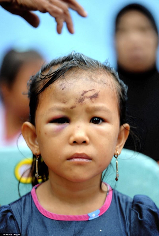 Bé gái bị thương trong khi xảy ra động đất, may mắn là em vẫn sống sót và được đưa đến nơi an toàn.