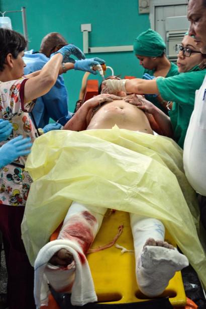 Ông Carlos Alberto Martinez, giám đốc bệnh viện Calixto Garcia cho hay hiện chỉ có 3 phụ nữ sống sót nhưng đều đang trong tình trạng nguy kịch. Họ đang được chăm sóc cấp cứu đặc biệt tại bệnh viện.