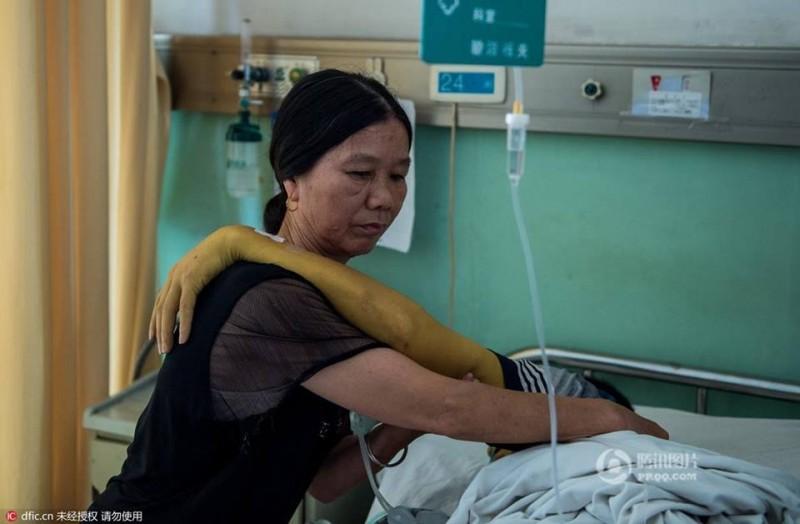 Là một tài xế xe tải, anh Zhang chỉ đủ ăn chứ không có của để dành. Gia đình anh đã phải tiêu đến những đồng xu cuối cùng để trang trải những khoản viện phí đắt đỏ. Cuộc sống của anh thực sự bước vào ngõ cụt khi cô con gái lớn 13 tuổi  mắc bệnh bạch cầu cấp tính.  Không còn cách nào khác, gia đình cuối cùng đành phải nhờ đến sự giúp đỡ của những tấm lòng hảo tâm. Chỉ trong vòng vài ngày, anh Zhang đã nhận được số tiền quyên góp lên tới 30.000 USD.