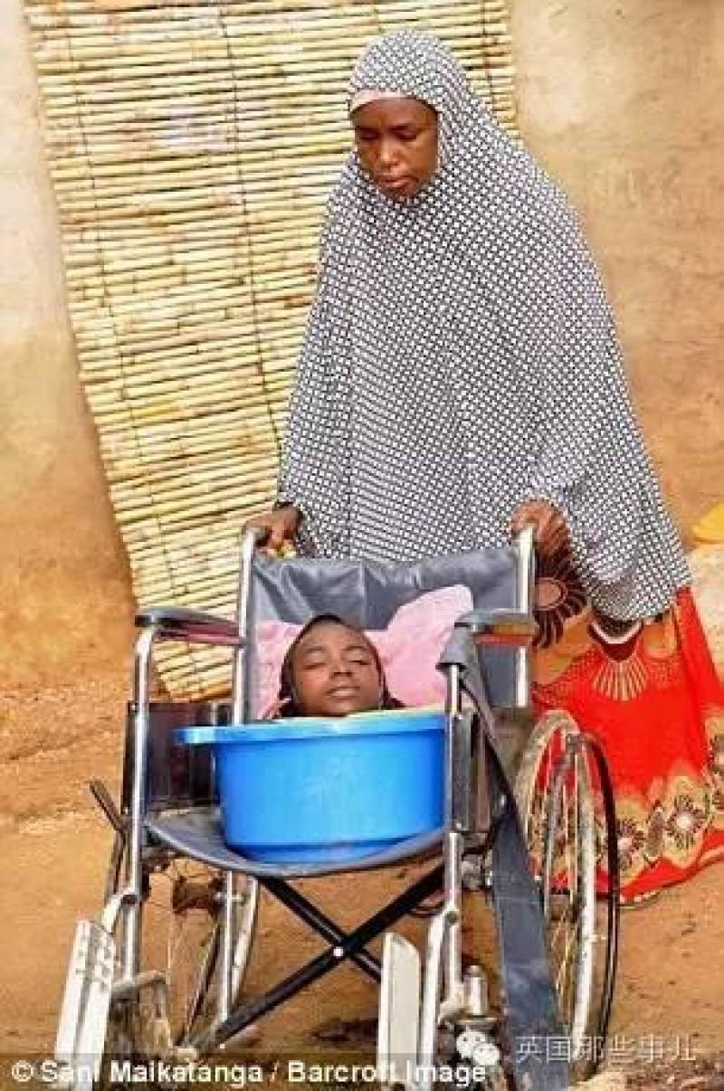 Gần đây gia đình Rahma đưa cô đi siêu thị, có một vị khách nhìn thấy tình cảnh của cô đã vô cùng kinh ngạc. Vị khách hảo tâm mua tặng Rahma một chiếc xe lăn và chụp hình cô đưa lên các phương tiện truyền thông, nhờ vậy câu chuyện của Rahma được nhiều người biết tới.