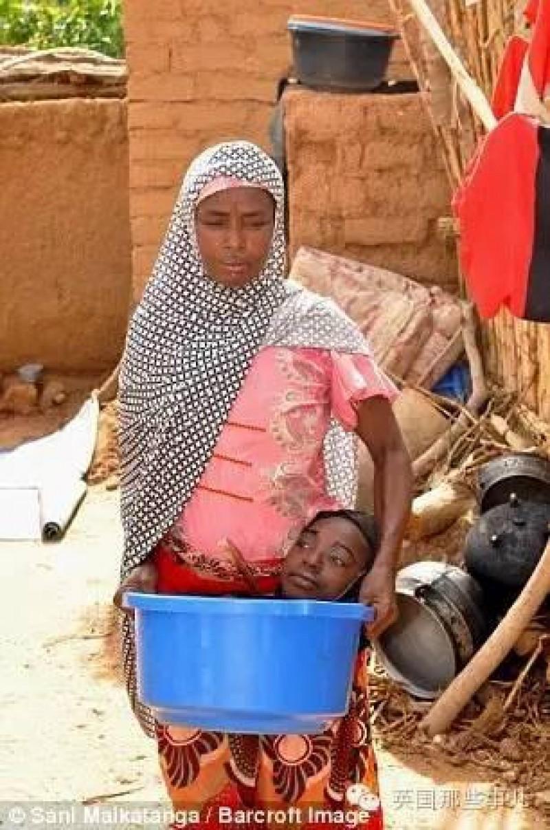 Đối với một gia đình vốn nghèo khó như nhà Rahma, việc chăm lo và chữa trị bệnh cho cô càng là một gánh nặng lớn. Để chăm sóc cho Rahma dễ dàng hơn, người nhà đặt cô vào trong một chiếc chậu nhựa, cô muốn đi đâu họ sẽ mang chiếc chậu đi đến đó.