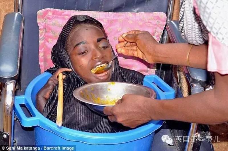 Cô hoàn toàn không thể tự lo liệu cho cuộc sống của mình, từ vệ sinh cá nhân, ăn uống, đi ngủ... tất cả đều nhờ người nhà chăm lo, giúp đỡ.