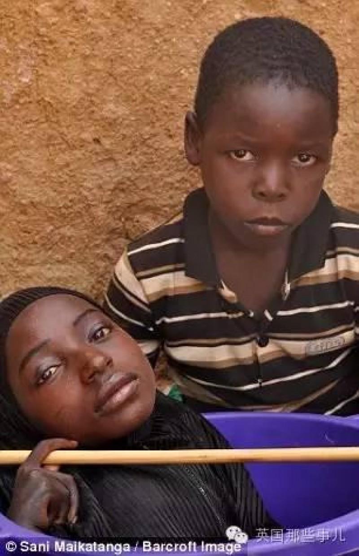 """Fahad - cậu em trai 10 tuổi của Rahma luôn ở bên cạnh chị mình, giúp đỡ tất cả mọi việc mà chị cậu muốn, cũng thường xuyên mang chiếc chậu của Rahma sang nhà hàng xóm, họ hàng chơi. """"Mỗi lần nhìn thấy người khác giúp đỡ chị cháu, cháu thấy rất vui"""" - Fahad chia sẻ."""