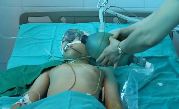 """BV Nhi TƯ """"chi viện"""" cứu bé 10 tuổi bị xuất huyết não hiễm gặp - Ảnh 1."""