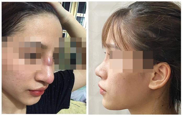 Suýt hỏng mũi do nhiễm trùng sau khi nâng mũi tại Spa - Ảnh 1.
