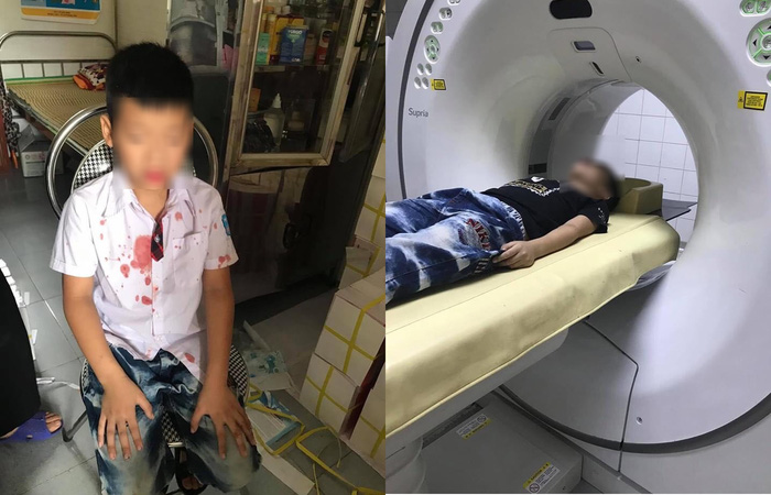 """Mẹ học sinh lớp 1 bị đánh ở Hòa Bình: """"Tại sao con tôi đang ở trong trường lại bị lôi ra ngoài đánh"""" - Ảnh 1."""